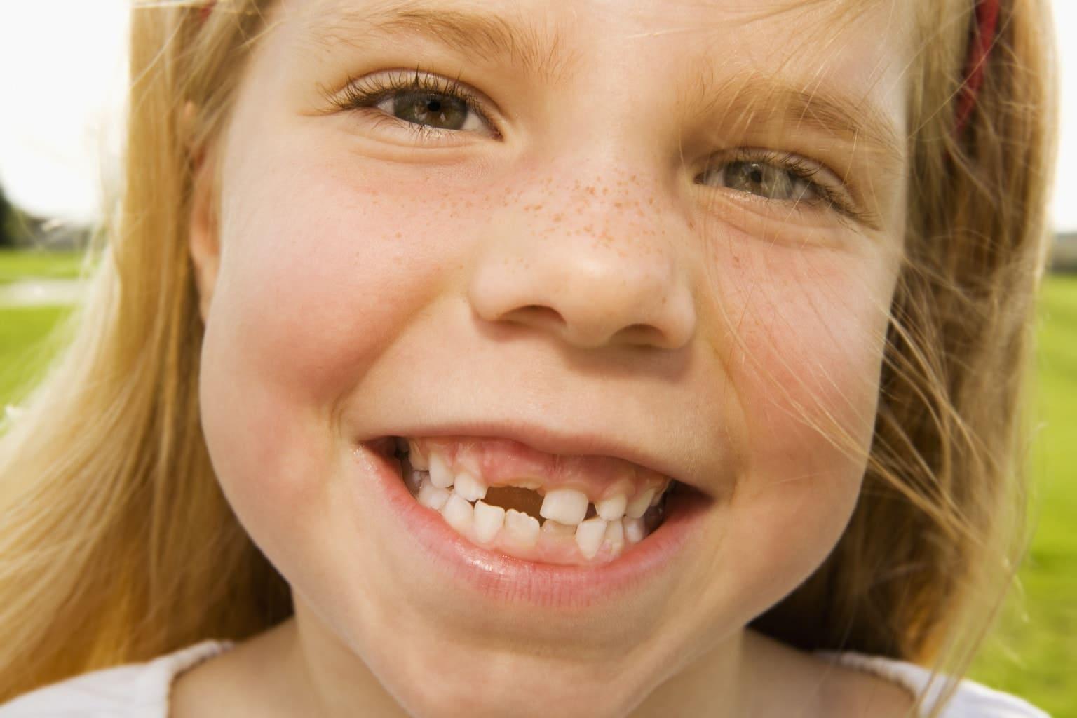 tratamentul dintiilor de lapte