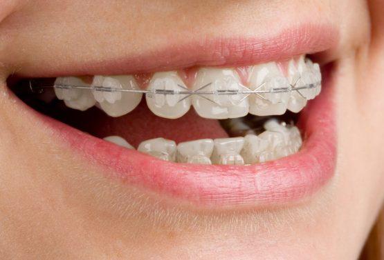 Contenția dentară
